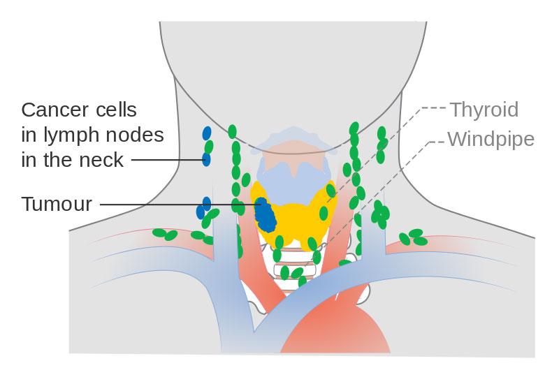 甲状腺やそれにリンパ節に広がる癌細胞や腫瘍の概念図 ©Cancer Reserach UK