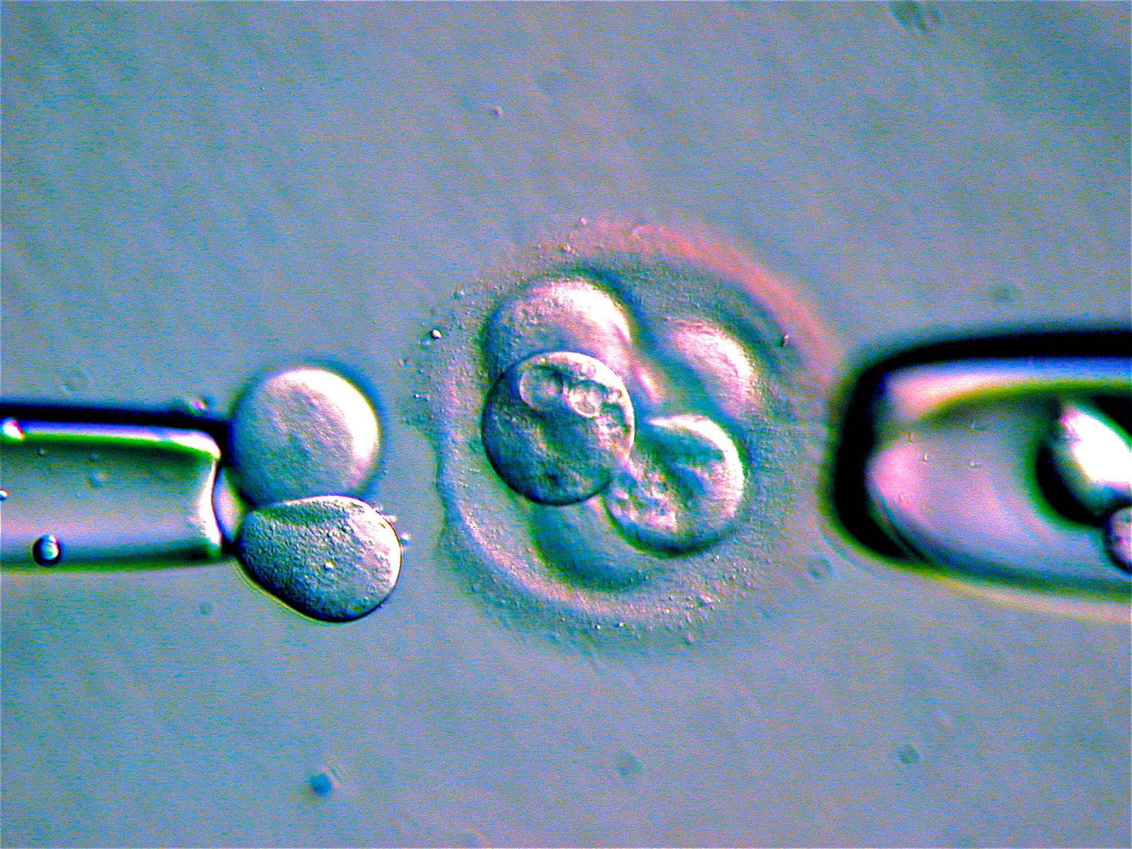 細胞分裂を繰り返す受精卵から細胞を搾取し、その染色体や遺伝子を分析する技術は夢ではなく確立された技術だ。